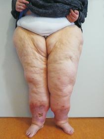 fieber bis 40 bei 3 jährigen ohne symptome